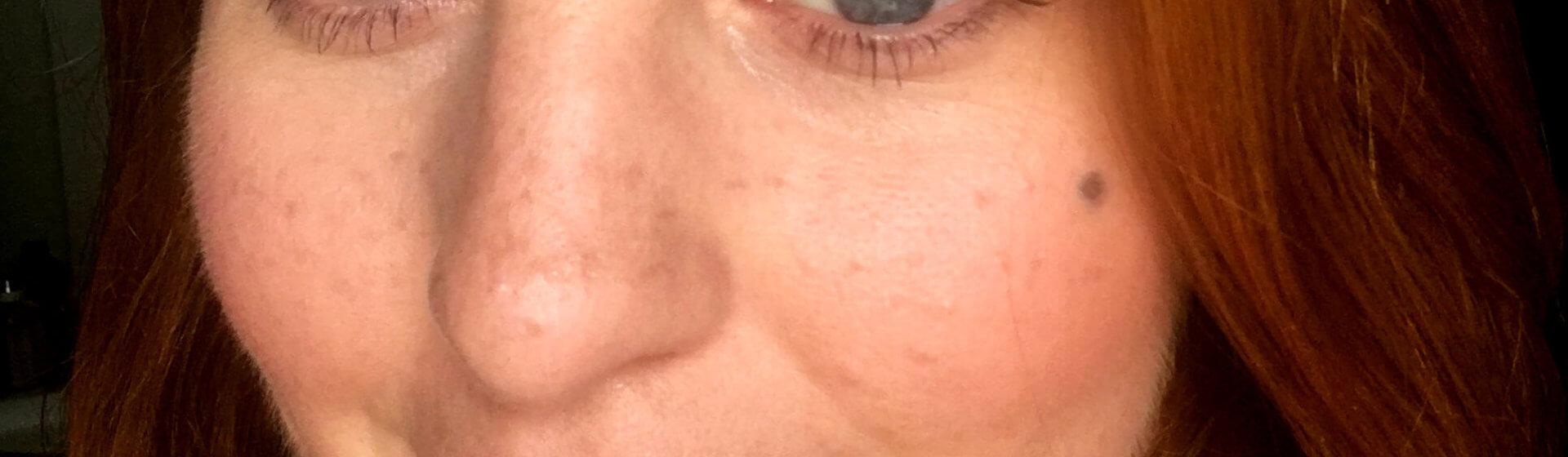 freckles beitragsbild Sommersprossen