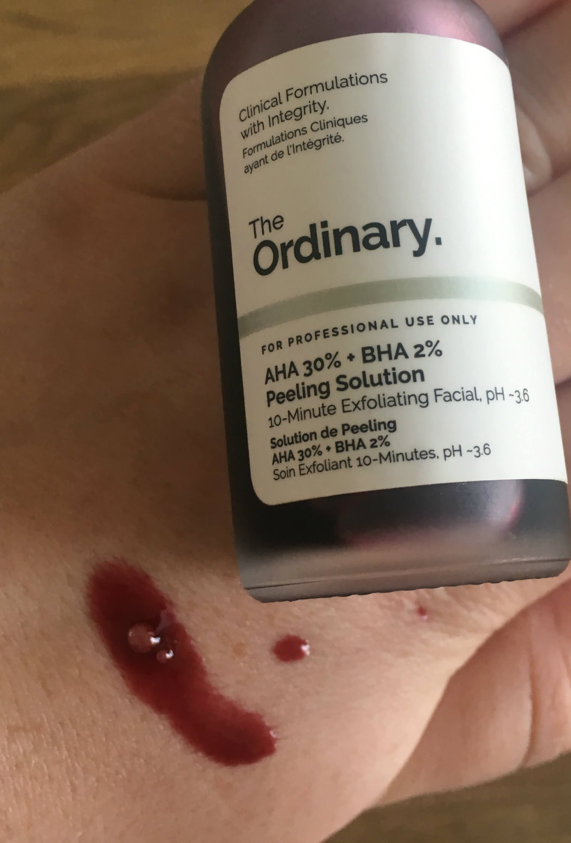 the ordinary peeling